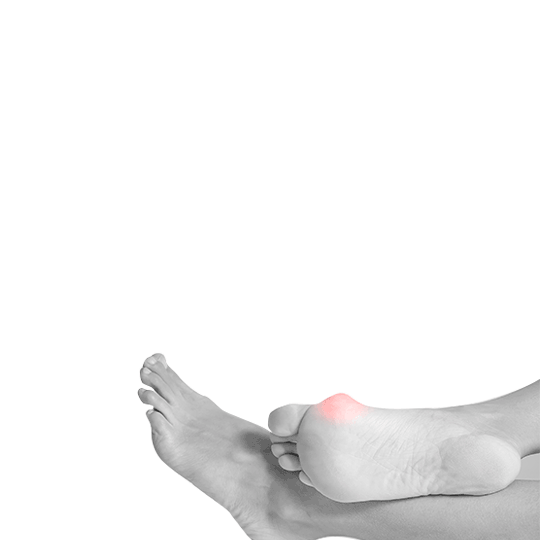 Hallux Valgus (čukljevi), ortopedska obuća i ulošci